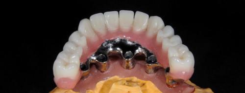 Spodný pohľad na úplnú akrylovú protetickú náhradu chrupu.