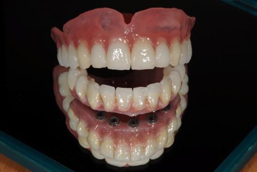 Čelný pohľad na úplnú akrylovú protetickú náhradu chrupu.