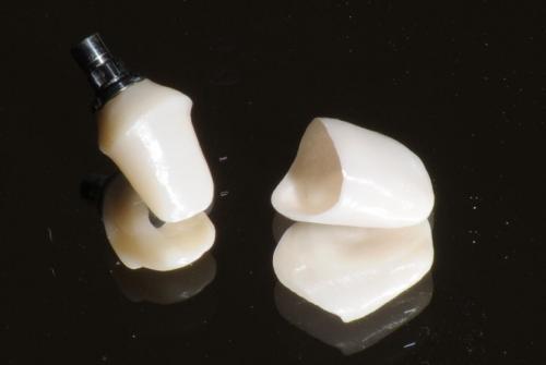 Jednotlivé korunky zirkónových protetických zubov.